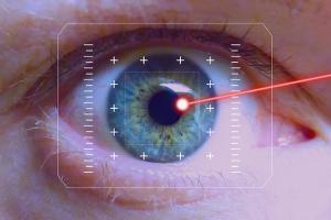 Eine Lidstraffung mittels Lasertechnologie ist eine Alternative zu einem operativen Eingriff