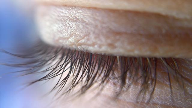 Eine Lidstraffung mittels Laser erfolgt schnell und hat nur selten Nebenwirkungen